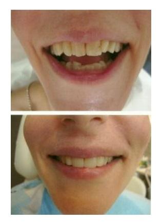 Λευκό χαμόγελο με όψεις ρητίνης πριν και μετά