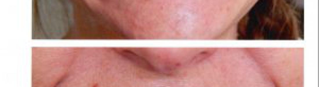 Διόρθωση χασμοδοντίας με lifting δοντιών σε 1 ραντεβού για την κάθε γνάθο