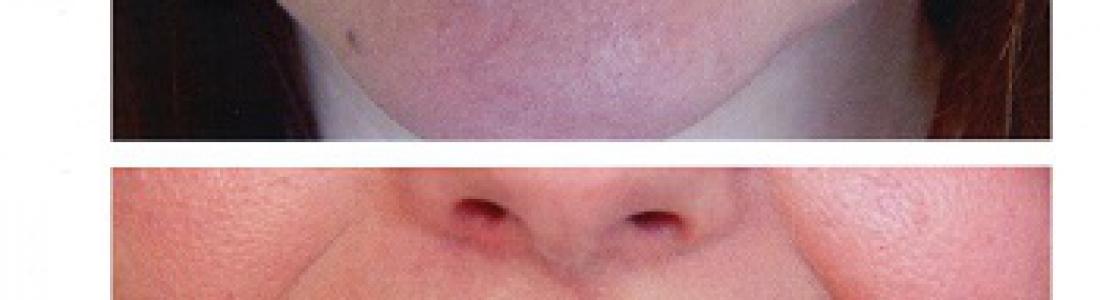 Lifting δοντιών σε στραβά δόντια σε 1 rdv για την κάθε γνάθο
