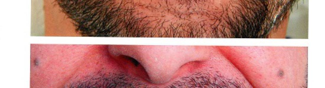 Διόρθωση των στραβών και κίτρινων δοντιών με όψεις ρητίνης σε 1 rdv για την κάθε γνάθο