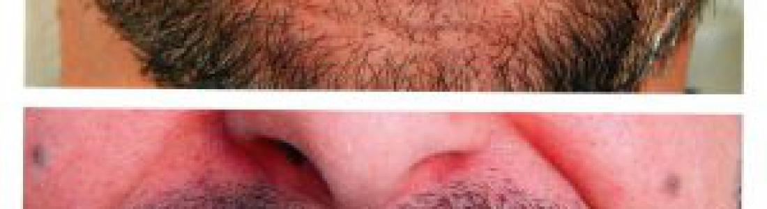 Διόρθωση των στραβών και κίτρινων δοντιών με όψεις ρητίνης