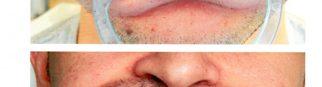 Αισθητική οδοντιατρική με όψεις ρητίνης σε δόντια αραιά με ταυτόχρονη αναβάθμιση χρώματος