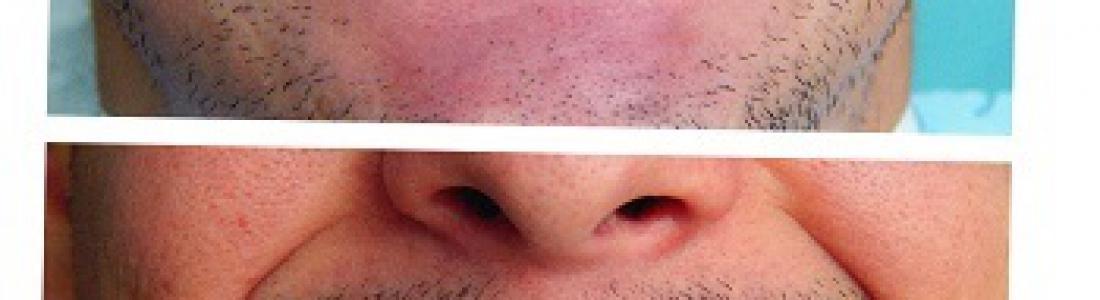 Lifting δοντιών με όψεις ρητίνης σε 1 rdv για την κάθε γνάθο