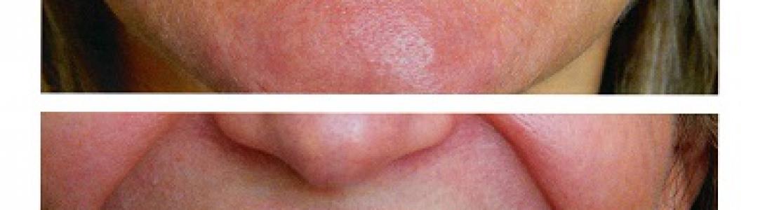 Lifting δοντιών σε 1 ραντεβού για την κάθε γνάθο