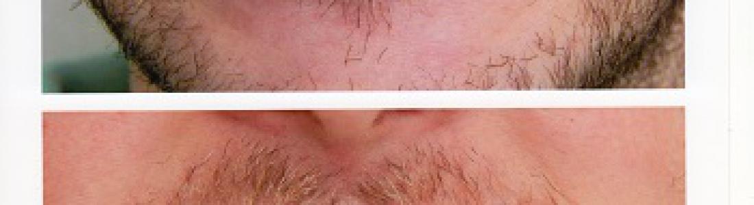 Liftig δοντιών σε τερηδονισμένα δόντια με όψεις ρητίνης σε 1 rdv για την κάθε γνάθο