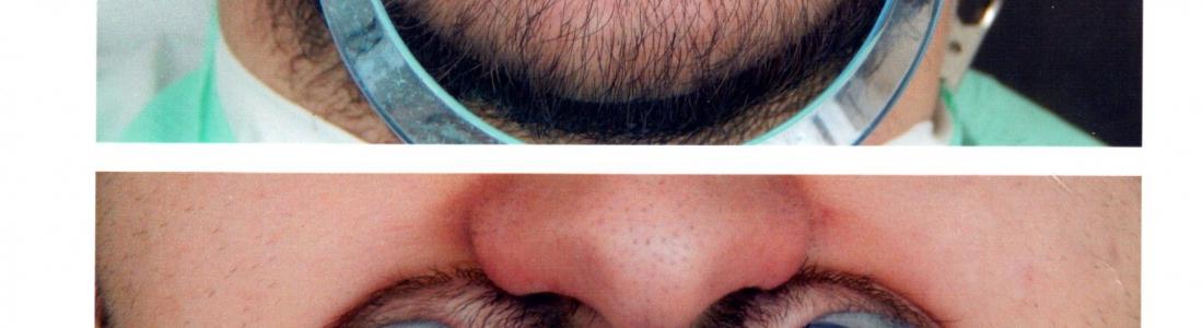 Dental lifting – Αισθητική Οδοντιατρική με όψεις ρητίνης