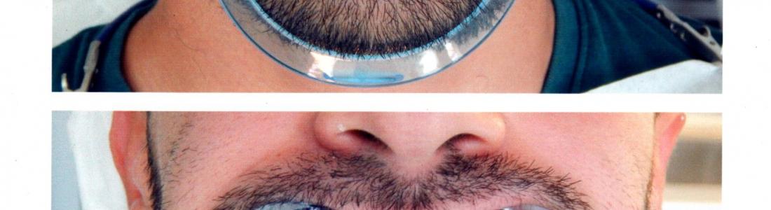 Αισθητική οδοντιατρική σε αραιοδοντία με όψεις ρητίνης σε 1 ραντεβου